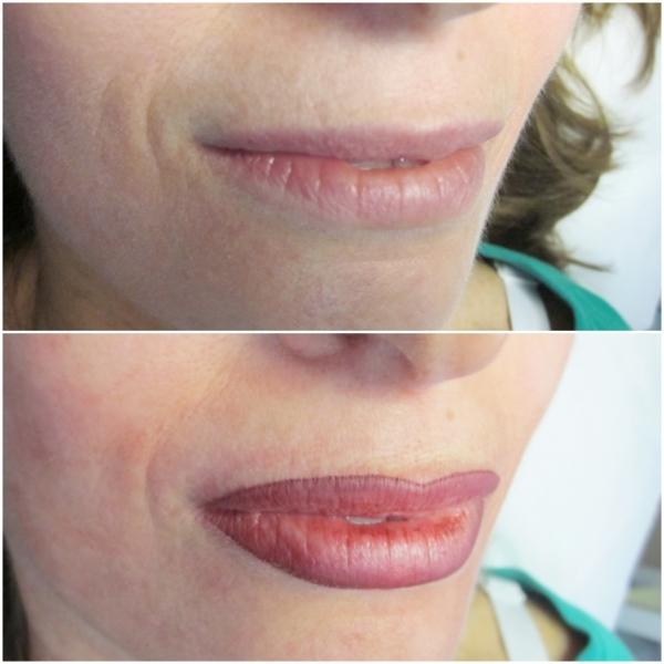 Lips 11