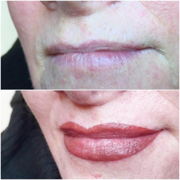 Lips 6
