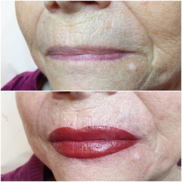Lips 7