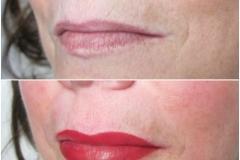 Lips 10